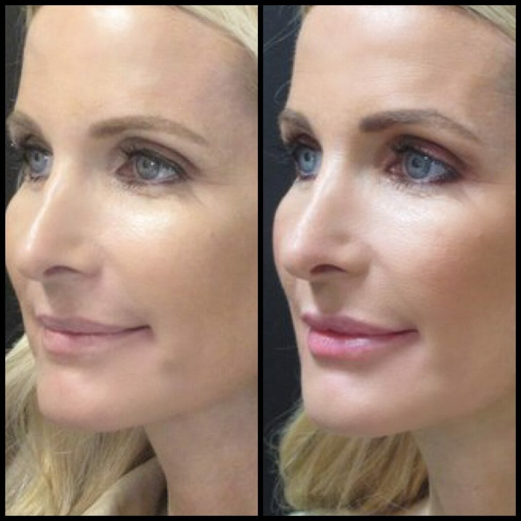 Juvederm lip filler - Things You Should Know Before Getting Lip Filler